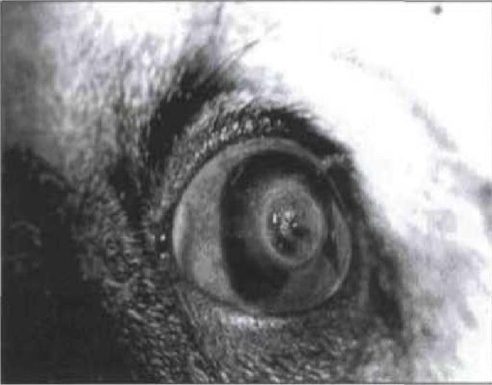 нарушение сферичности роговицы